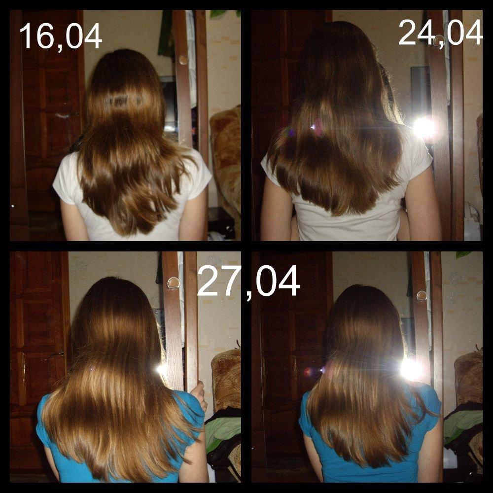 Купить витамины для волос иннеов москва